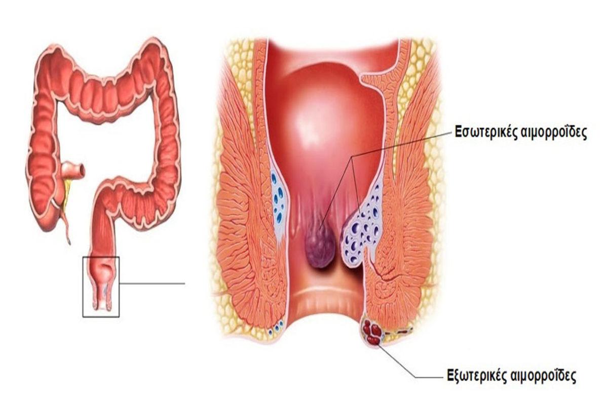 Τι είναι οι Αιμορροΐδες