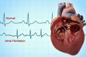 καρδιακά προβλήματα νερό και υγεία