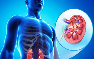 πέτρα νεφρών νερό και υγεία